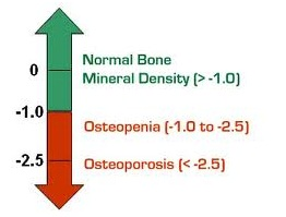 apa itu osteoporosis 2