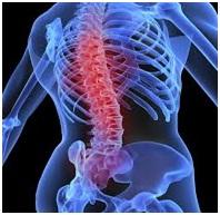 Diagnosis Osteoporosis