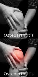 Osteoarthtritis